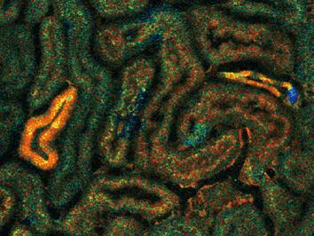 生体腎におけるエネルギー動態イメージング法を確立