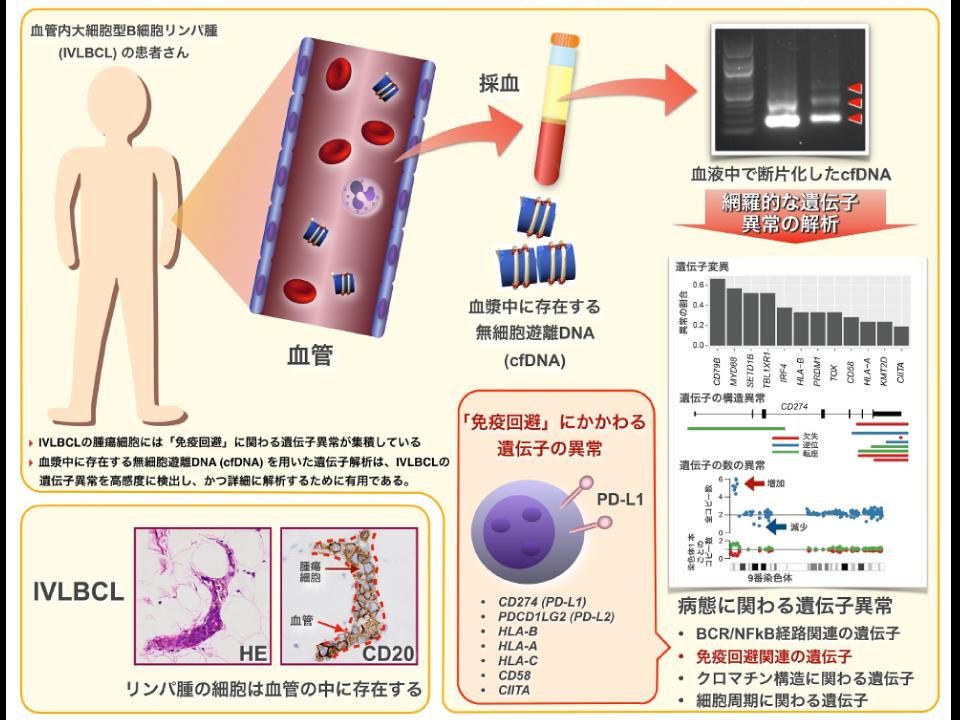 診断困難な悪性リンパ腫病型における遺伝子異常を、末梢血を用いて高感度に検出